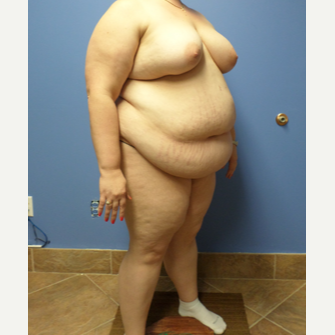 35-44 year old woman treated with Weight Loss before 3370130