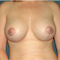 35 year old woman treated with Breast Lift with Implants after 3665948