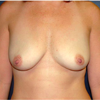 35 year old woman treated with Breast Lift with Implants before 3665948