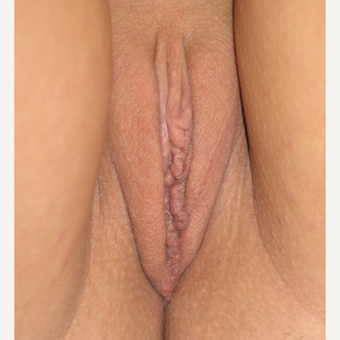 25-34 year old woman treated with Labiaplasty after 3289386