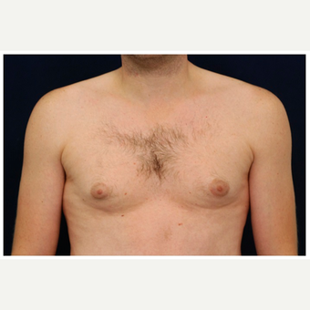 25-34 year old man treated with Male Breast Reduction before 3536854