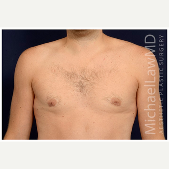 25-34 year old man treated with Male Breast Reduction after 3536854