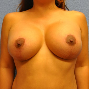 Breast Augmentation, Breast Implants, Mastopexy, Breast Lift after 1166190