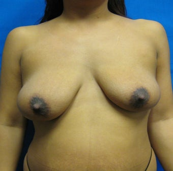 Breast Augmentation, Breast Implants, Mastopexy, Breast Lift before 1166190