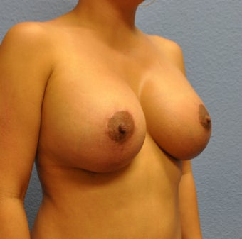 Breast Augmentation, Breast Implants, Mastopexy, Breast Lift 1166190