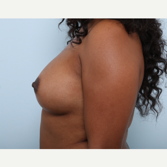 Breast Augmentation after 3340328