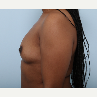Breast Augmentation before 3340328