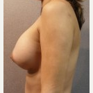 25-34 year old woman treated with Breast Implants after 3108099