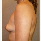 25-34 year old woman treated with Breast Implants before 3108099