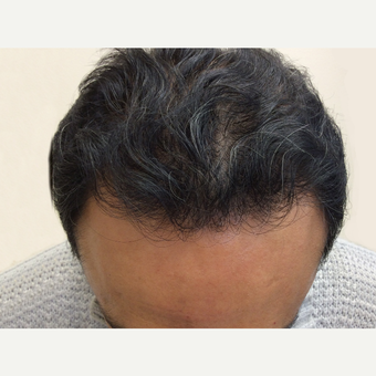 45-54 year old man treated with NeoGraft after 3763205