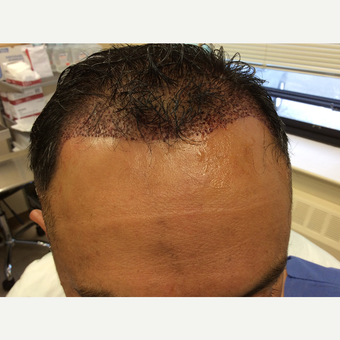 45-54 year old man treated with NeoGraft before 3763205