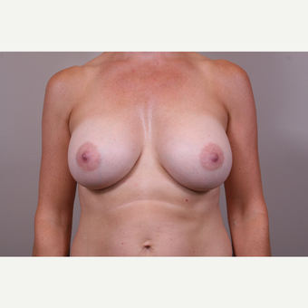 35-44 year old woman treated with Breast Augmentation after 3768631