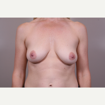 35-44 year old woman treated with Breast Augmentation before 3768631