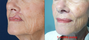 65-year-old with poor lip scarring repaired with local flap reconstruction after 672296