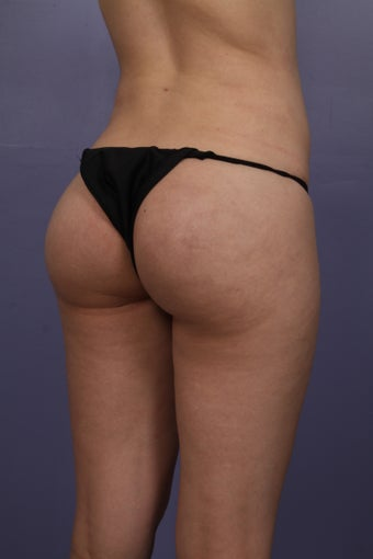 Revison Brazilian Butt Lift for Asymmetry after 1374524