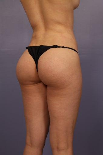 Revison Brazilian Butt Lift for Asymmetry before 1374524