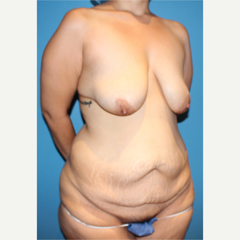35-44 year old woman treated with Mommy Makeover before 3148322