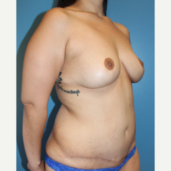 35-44 year old woman treated with Mommy Makeover after 3148322