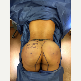 35-44 year old woman treated with Brazilian Butt Lift after 3438113