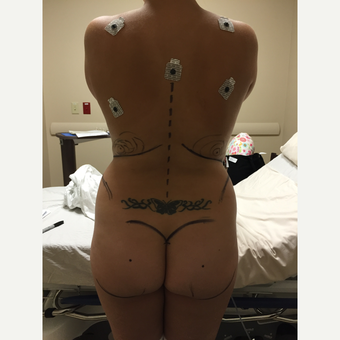 35-44 year old woman treated with Brazilian Butt Lift before 3438113
