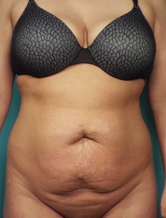 35-44 year old woman treated with Tummy Tuck and circumferential liposuction before 3656706