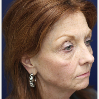 55-64 year old woman treated with Injectable Fillers before 3137247