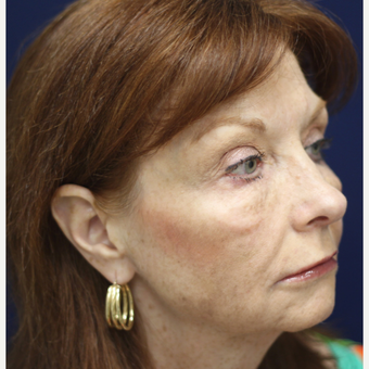 55-64 year old woman treated with Injectable Fillers after 3137247