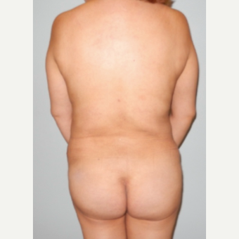 45-54 year old woman treated with Brazilian Butt Lift after 2241644
