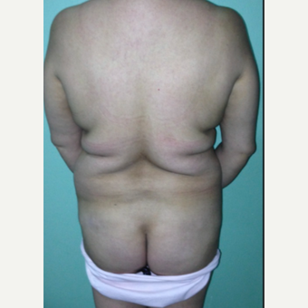 45-54 year old woman treated with Brazilian Butt Lift before 2241644
