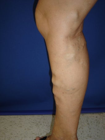50 year old man with varicose veins