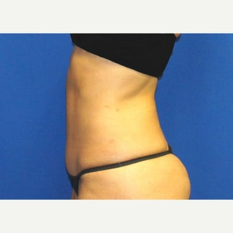 53 year old woman treated with Mini Tummy Tuck and Contour Liposuction 1588609