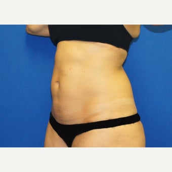 53 year old woman treated with Mini Tummy Tuck and Contour Liposuction before 1588609