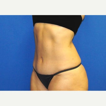 53 year old woman treated with Mini Tummy Tuck and Contour Liposuction after 1588609