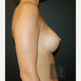 25-34 year old woman treated with Breast Augmentation after 3109842