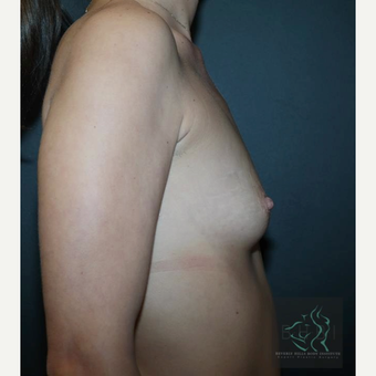 25-34 year old woman treated with Breast Augmentation before 3109842