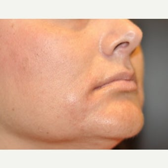 45-54 year old woman treated with Voluma 1895947