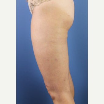 35-44 year old woman treated with Cellulaze after 2576962