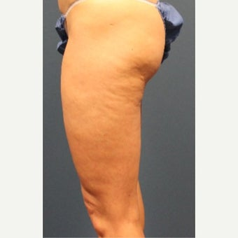 35-44 year old woman treated with Cellulaze before 2576962