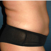 30 year old woman treated with Liposuction after 3721071