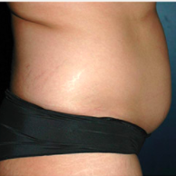 30 year old woman treated with Liposuction before 3721071