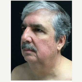 55-64 year old man treated with Facelift before 3219492