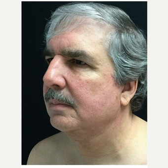55-64 year old man treated with Facelift after 3219492