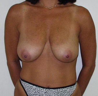 Breast Lift before 60029