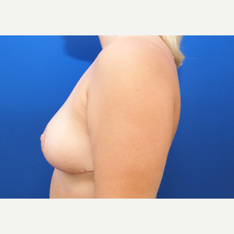 25-34 year old woman treated with Breast Reduction after 3098632