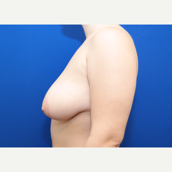 25-34 year old woman treated with Breast Reduction before 3098632