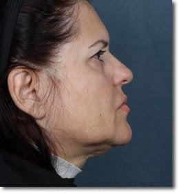 Face & Neck Lift 624911