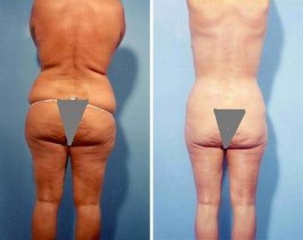 Liposuction before 278763