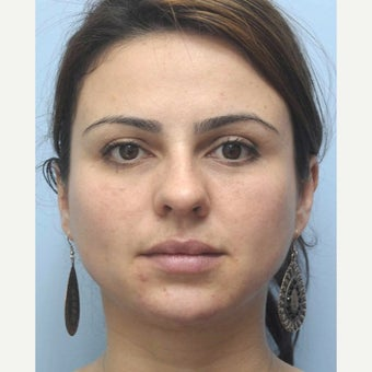 Woman treated with Eye Bags Treatment 1538899