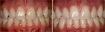 Mid 30 Year Old Female Mother treated with Invisalign for 10 months