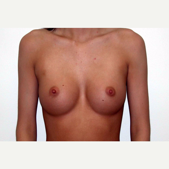 18-24 year old woman treated with Breast Augmentation after 3377578
